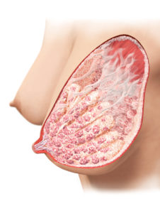 breast_1_illustration_verl