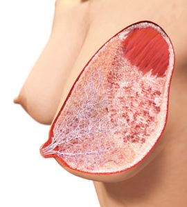 breast_3_illustration_small