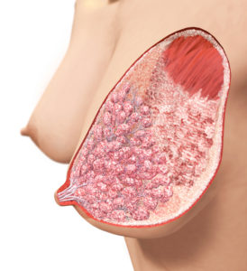 breast_4_illustration_small